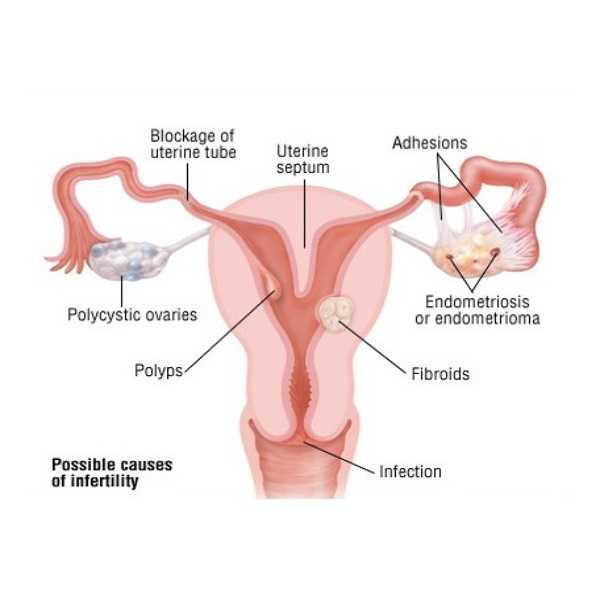 Uterine Problems