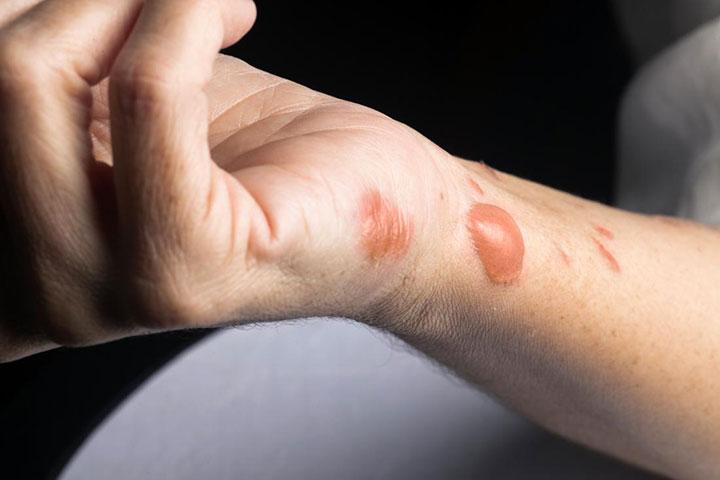 burn skin