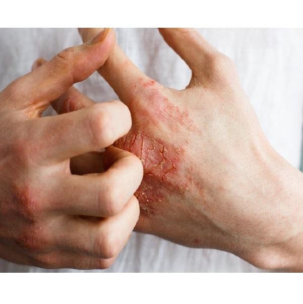 انواع بیماریهای پوستی و درمان آنها