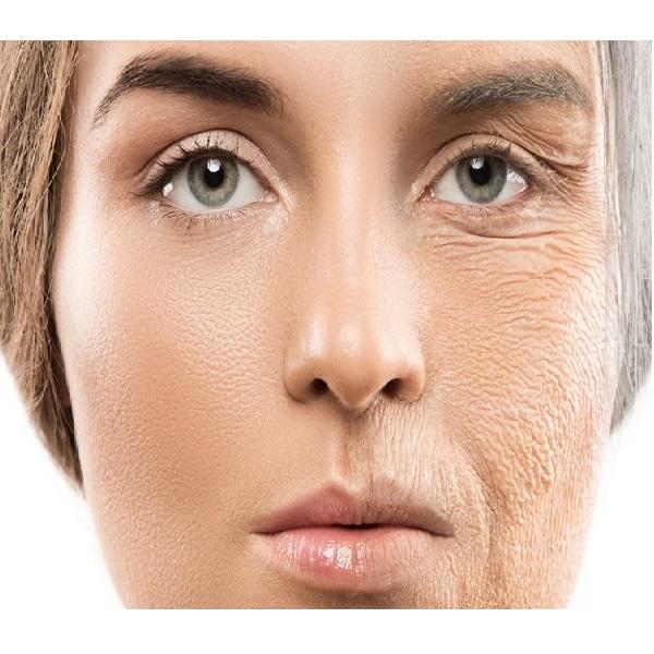 تاثیرات استرس بر پوست و صورت