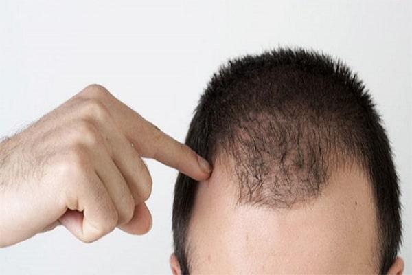 ریزش موی سر در آقایان